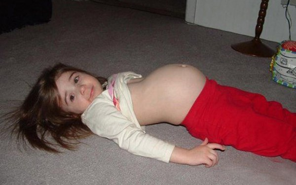 """KINH HOÀNG: Cô bé """"mang thai"""" 3 con rắn suốt 5 năm"""